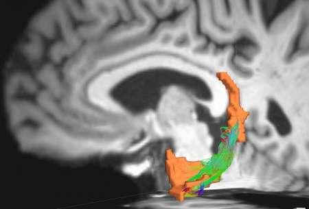 Parkinson's%20brain