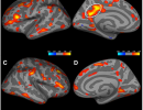 Depressive Symptom Severity Is Associated with Increased Cortical Thickness in Older Adults