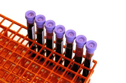 blood tubes in rack
